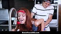 Cute Teen With Braces Gets Head Gear Stuck In Faucet Fucked By Boyfriend